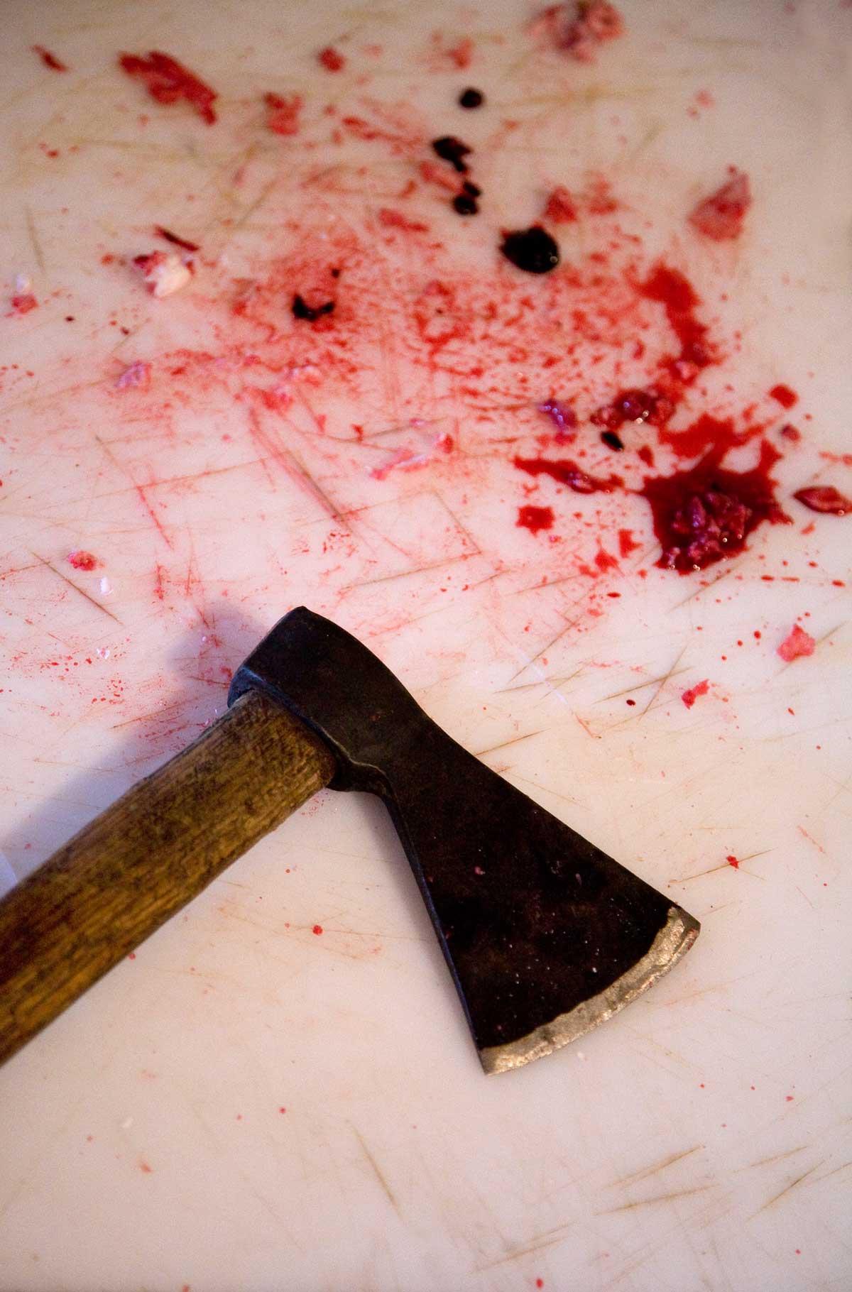 Come fermare il sangue da una ferita da taglio | Donna Moderna