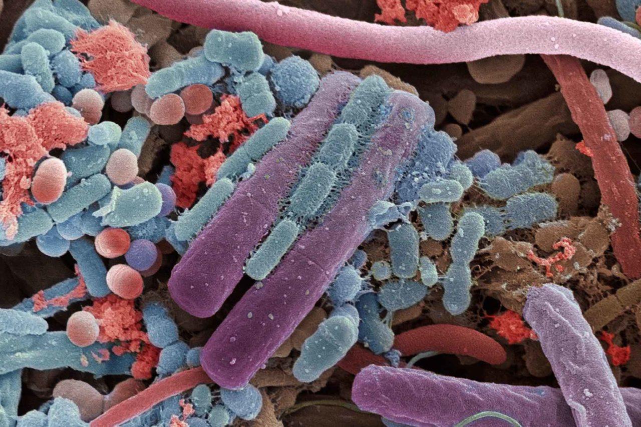 ingrandimento elettronico microbiota